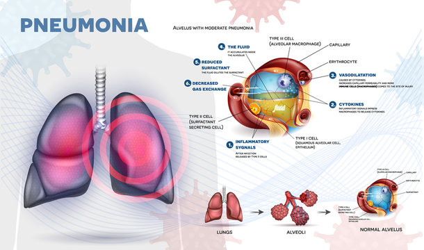 Pneumonia explained info poster, body immune response, human lungs and detailed alveolus anatomy illustration.