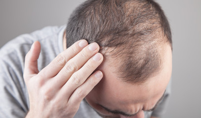 Caucasian man checking his hair. Hair loss problem Fotobehang