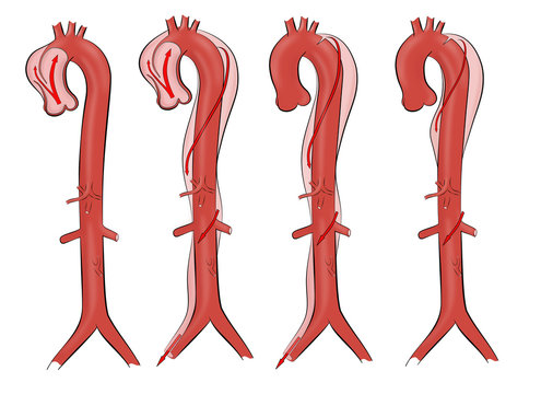 Aortic dissection. Ilustration of four types of aortic dissection