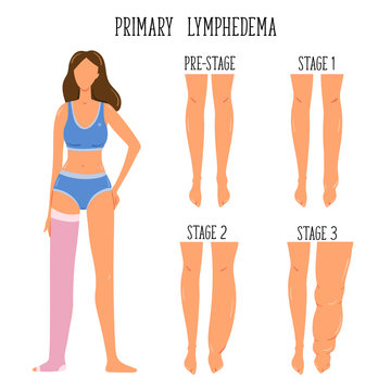 Primary Lymphedema stages. Lymphatic system disfunction. Elephantiasis, legs swelling disease. Young girl wearing compression stocking.