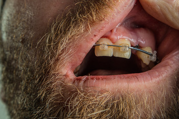 Visible tooth implant in a male gums, surrounded with mouth with dried blood and beard. Opened lips to reveal a dental implant on a scary picture.