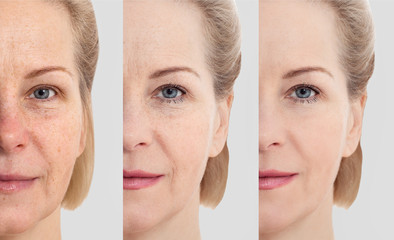 Face without makeup. Middle age close up woman face before after cosmetic. Skin care for wrinkled face. Before-after anti-aging facelift treatment. Facial skincare and contouring.