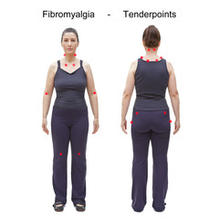 The 18 tender or trigger points of fibromyalgia indicated by red spots on the body of an woman, rear and frontal view