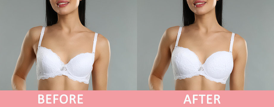 Woman before and after breast augmentation on light grey background, closeup. Banner design