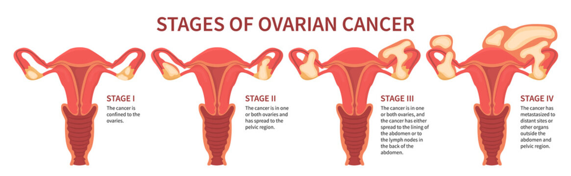 Flat vector illustration of ovarian cancer four stages mentioning ovaries, pelvic region, lining of abdomen and metastases. Woman reproductive system isolated on white background inline scheme.