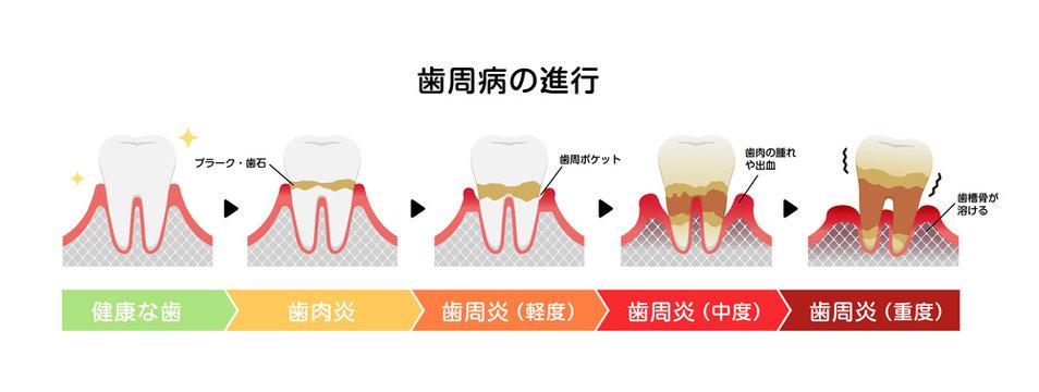 歯肉炎・歯周病のステージと症状イラスト