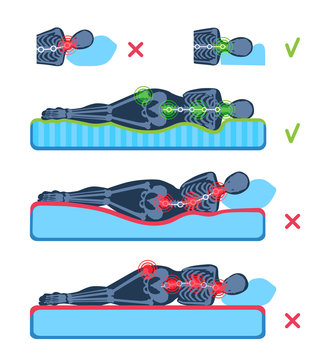 A woman lying on her side on the orthopedic mattress and pillow. A human body silhouette with a skeleton. Good and bad posture, position. Pain areas in a spine, a hip. A comparison flat illustration.