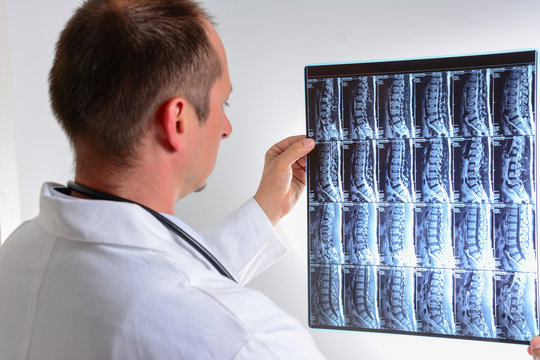 MRI scan of human lumbar spine with doctor. Doctor looking at MRI of spinal cord.