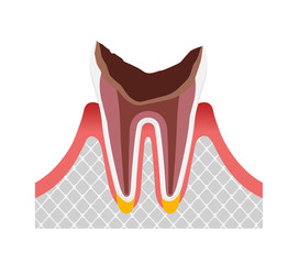 The stage of tooth decay / Dead tooth