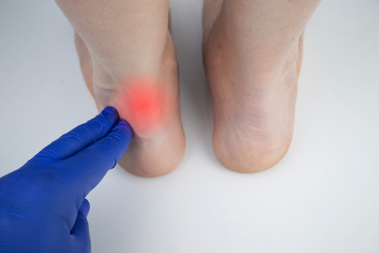 An orthopedic doctor examines a woman's leg. Achilles tendon and ankle diseases. Inflammation of the heel and foot, achillobursitis and achillotomy, rheumatism, tendon rupture