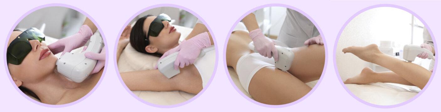 Collage with photos of woman undergoing laser epilation procedure. Banner design