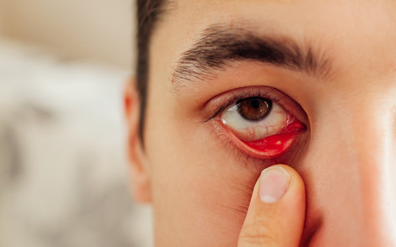 Infected sty barley purulent eye. Man pulls down lower eyelid showing inflammation pus caused by Staphylococcus.