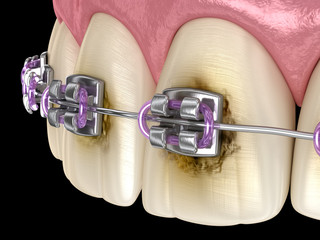Caries process near braces as result by poor hygiene. Medically accurate 3D illustration of oral hygiene.