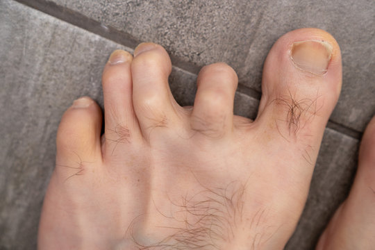 Mens hammer toes with dislocated joints before surgery