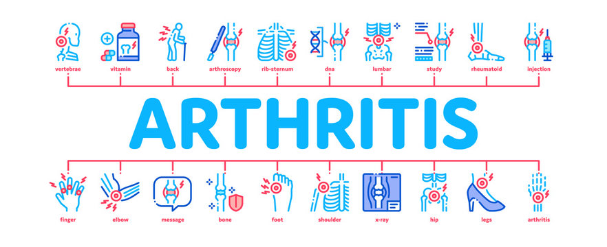 Arthritis Disease Minimal Infographic Web Banner Vector. Arthritis Symptoms And Treatments, Pain In Joints And Back, Neck And Knee, Fingers And Ribs Illustration