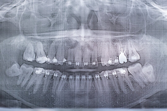 X-ray photograph of human teeth with a braces system. Retarded Wisdom Tooth. Film noise effect