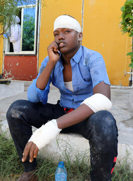 Abdirahman Aden Mohamed sits outside the Madina hospital after he got injured when a minibus struck a roadside bomb at Hawa Abdi village, northwest of Mogadishu