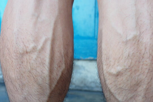 Closeup of bulging and swollen leg veins of a man caused by getting older age or having some exercise making blood pressure rises or when vein valves weaken