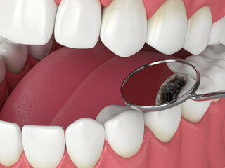 3d render of jaw with dental mirror