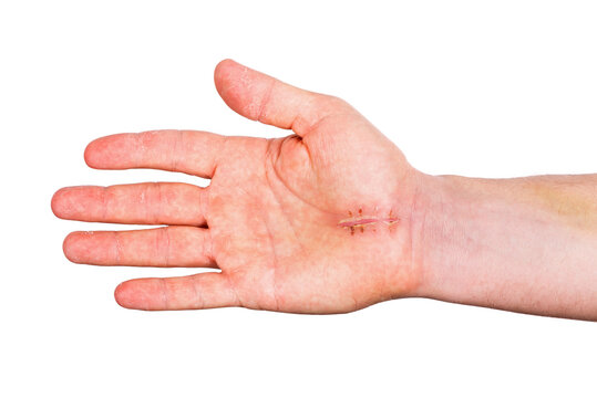 Surgical suture on palm of hand