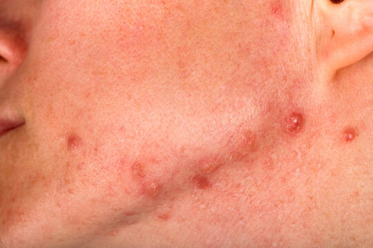 Acne on human face