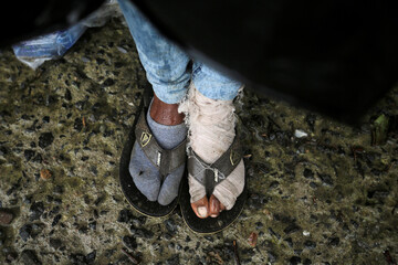 The feet of a migrant are pictured while shielding from the rain in Tegucigalpa