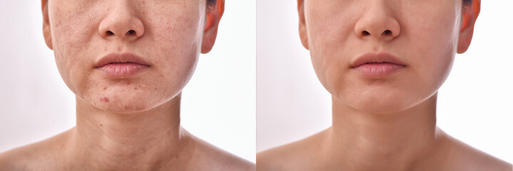Skin problems and acne scar, Before and after acne facial care treatment, Beauty concept.