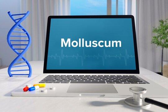 Molluscum. Laptop mit Begriff/Text auf Monitor. Computer von Arzt im Büro. DNA und Stethoskop. Medizin, Gesundheitswesen