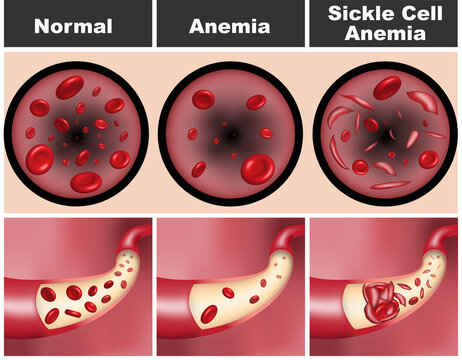 3D illustration of normal human blood vessel with flowing red blood cells versus anemia and sickle cell anemia condition