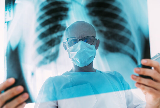 Male doctor portrait throught the patient chest x-ray film lungs scan at radiology department in hospital.Covid-19 scan body xray test detection for covid worldwide virus epidemic spread concept.