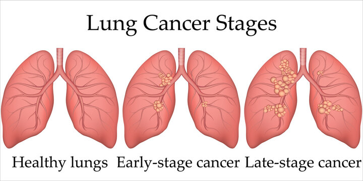 Vector medical illustration of human lung cancer development process. Stages of lung cancer from healthy lungs to the last stage. Poster for hospital or biology textbook.