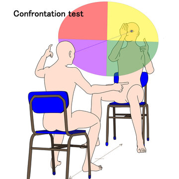 confrontation test is the test of visual field defects in neurology examination.