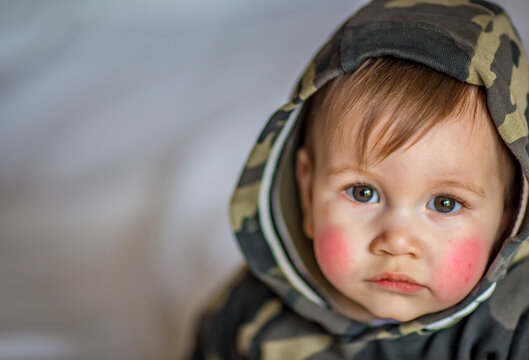 Atopic dermatitis eczema in baby.Condition that causes the skin to become red,dry,sore,itchy and cracked.Atopic eczema most often affects face in children.