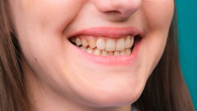 female Yellow teeth, fluorosis. Smokers problem teeth caused by fluoride, smoking, or coffee. Brown tooth enamel due to illness and medicine. Natural photo.