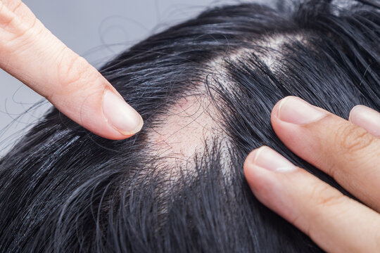 Alopecia Areata - Spot Baldness is a condition in which hair is lost from some or all areas of the body.