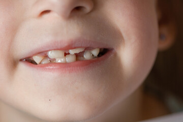 Foto op Canvas Sweet Monsters A permanent teeth behine the milk tooth in the mouth of child 6 year old