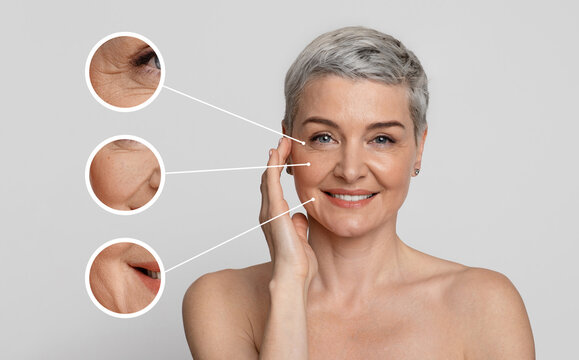 Aged Skin Care. Collage of beautiful mature woman with zoomed wrinkles zones
