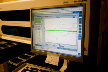 Results from a test for the novel coronavirus can be seen on a screen at the Microbiology department of North Devon District Hospital in Barnstaple