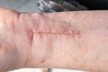 Scar on a woman's wrist
