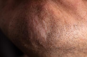 Close-up of the chin on the face of a man as a background.