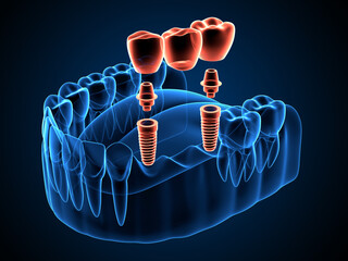 3d render of jaw x-ray with implants supported dental bridge