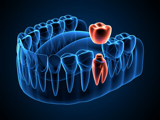 3d render of jaw x-ray  with dental crown embed on tooth