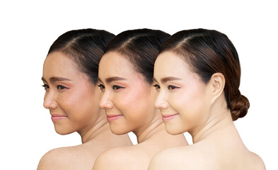 three pictures compared before and after treatment for freckles , freckles pigment spot removing and healing before and after laser treatment on Asian woman face to solve skin problem for better skin