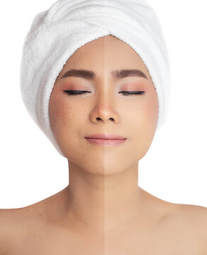 pictures compared before and after retouch freckles , freckles pigment spot removing and healing before and after laser treatment on Asian woman face to solve skin problem for better skin