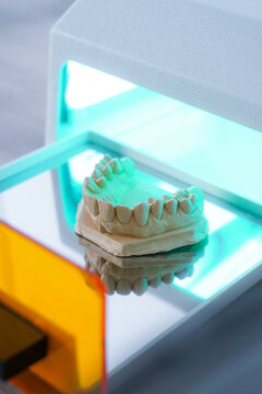 High angle of upper jaw dental cast model placed in light curing unit in modern laboratory