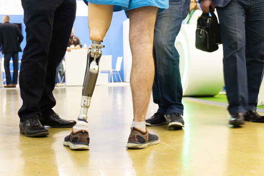 A man with a modern prosthetic leg in the building of a rehabilitation center. Trying and learning to walk with a prosthetic. Rehabilitation of people with disabilities. Cropped frame. Without a face.