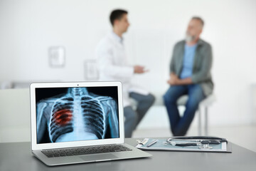 Doctor consulting man in clinic, blurred view. Focus on laptop displaying x-ray of patient with lung cancer