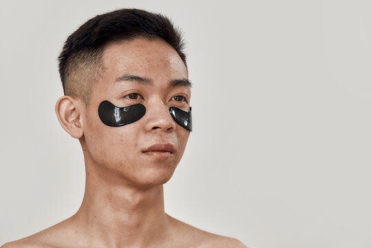 No dark circles. Portrait of shirtless young asian man with black patches under the eyes looking away isolated over white background. Beauty, skincare routine, cosmetology for men