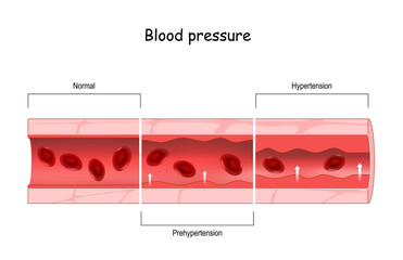 Hypertension. high blood pressure. Cross section of blood vessel with red blood cells