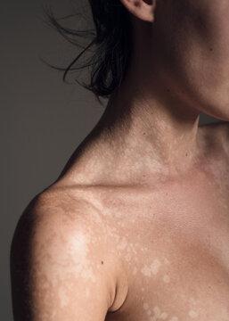 Skin with tinea versicolor